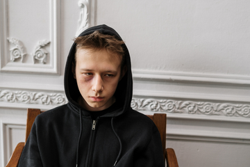 Young person with bruised eye (Photo by cottonbro from Pexels)